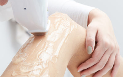 The Incredible Powers of Laser Hair Removal Technology